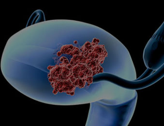 gynecologic cancer treatment